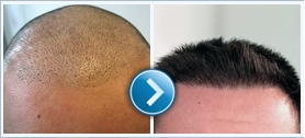 Hair transplant akciókkal és kedvezményekkel